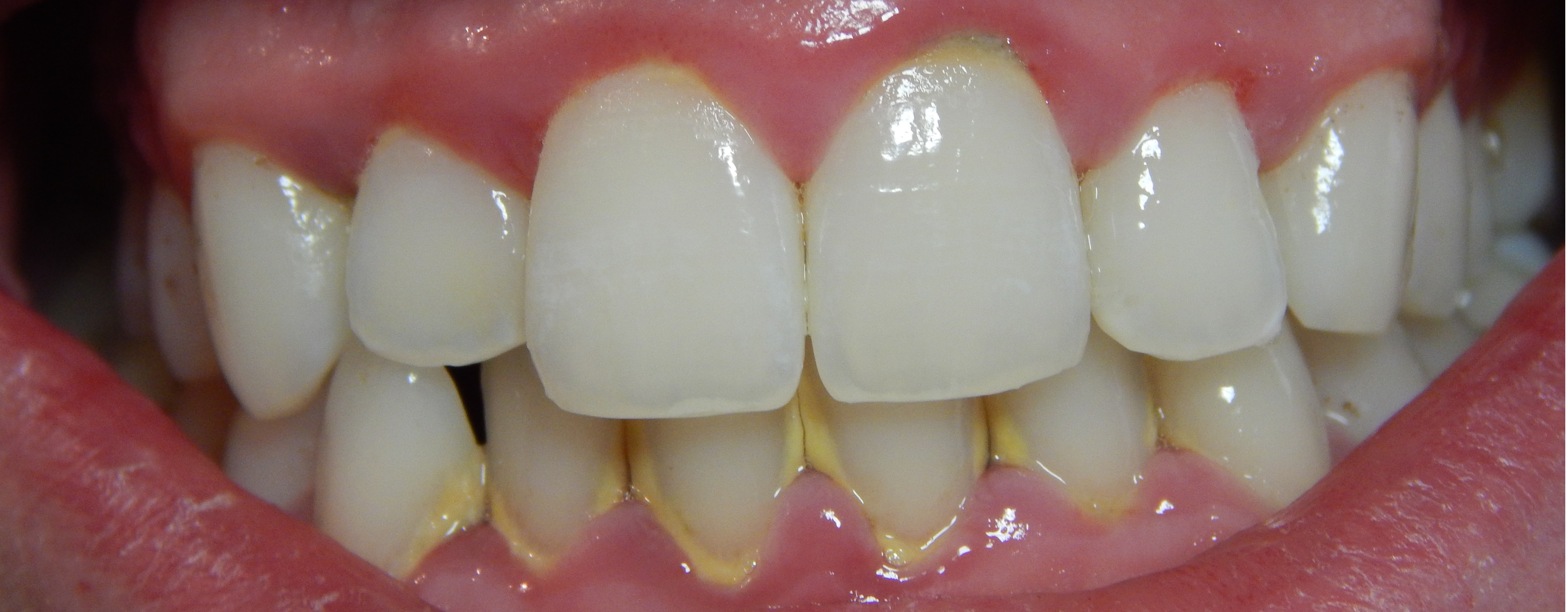 gingivitis-before